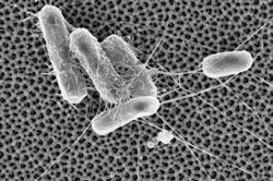 Nanoporous alumina repels E. coli cells. From the Cornell Chronicle.